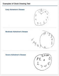 An example of how people with Alzheimer's Disease perceive a clock face – this is  test which doctors use to assess the development of the disease. As it progresses, numbers leave the clock face altogether, and then appear in the wrong places.